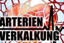 Arterienverkalkung - vorbeugen und behandeln der Arteriosklerose