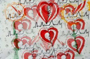Bluthochdruck Symptom Herzrasen